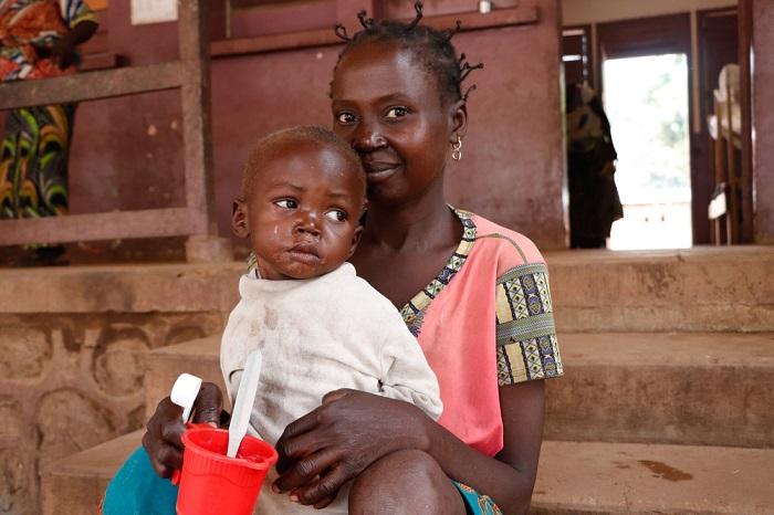 栄養失調の子どもたち 食べ物もなく、病院にも通えなかった ついには ...