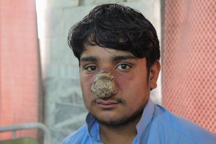 虫刺されのような腫れ 顔 蚊に刺されたような腫れが突然できる原因は何?痒くない場合は?