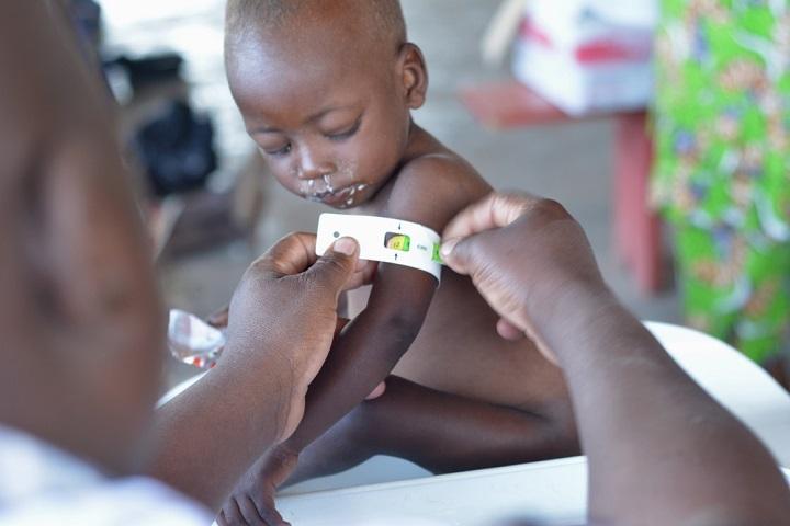 命のうでわ」で診断を急げ コロナ流行の中、栄養失調から子どもの命を ...