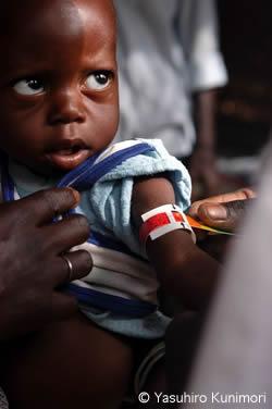 ブルキナファソ:子どもの栄養失調への取り組み | 活動ニュース | 国境 ...